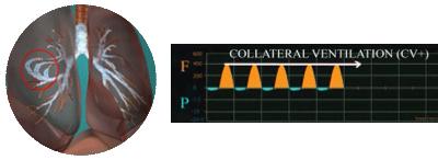 Collateral ventilation (CV+)